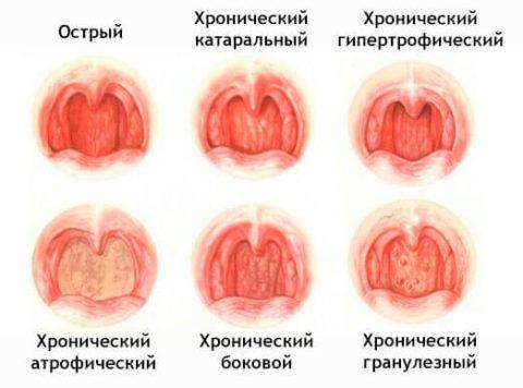 Каждая из форм хронического фарингита имеет определенные особенности клинических проявлений и структурных изменений глотки (на фото)