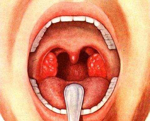 Некротическая стрептококковая ангина – важно своевременно распознать и лечить
