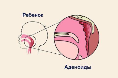 Носоглоточная миндалина находятся на задне-верхней стенке носоглотки и не видна при обычном осмотре зева