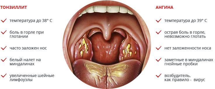 Фолликулы в горле и их роль в организме
