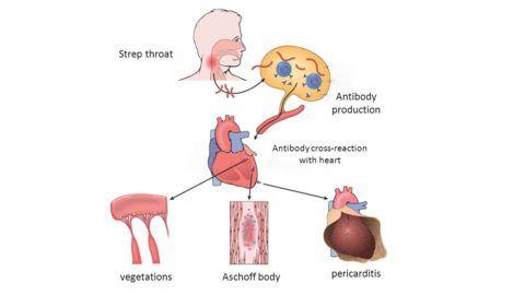 Патогенез острой ревматической лихорадки