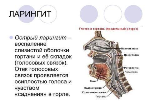 При ларингите у пациента наблюдается осиплость голоса, иногда полная его потеря.