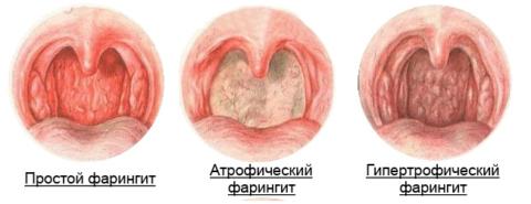При осмотре горла опытный врач может поставить точный диагноз и определить форму фарингита.