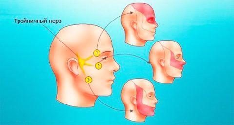 Схема близкого расположения узла тройничного нерва к уху