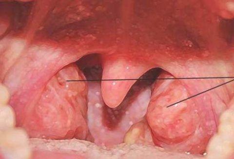 Воспаление аденоидов может привести к серьезным проблемам со здоровьем