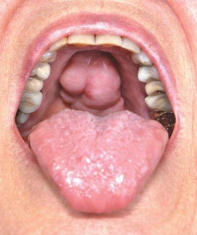 Воспаленные миндалины увеличиваются и способствуют появлению болевых ощущений