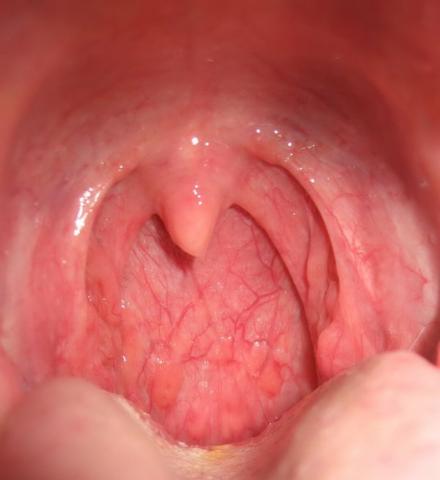 Фарингит – одно из осложнений после детской ангины.