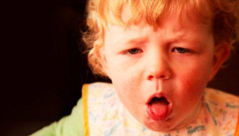 Ложный круп — это осложнение ларингита, возникающее в результате отека голосовых связок