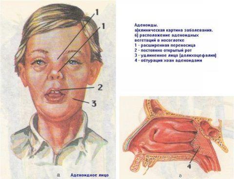 Несвоевременное лечение аденоидов, равно как и неправильно проведенная терапия, может привести к серьезным последствиям, вплоть до деформации внешнего облика.