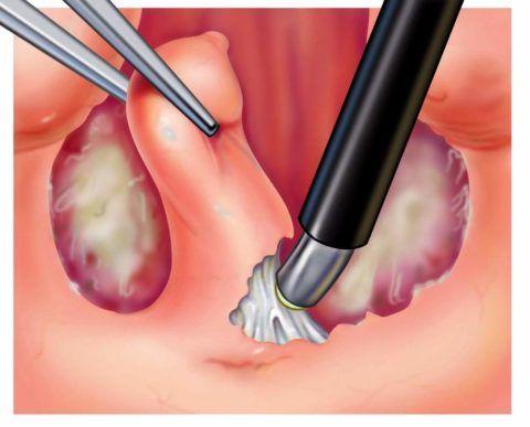 Операция по удалению миндалины