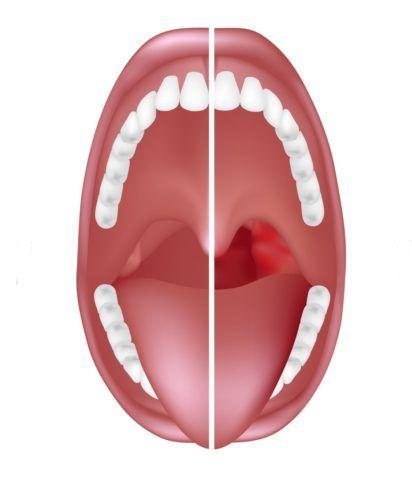 При ангине горло красное, на миндалинах могут быть налеты