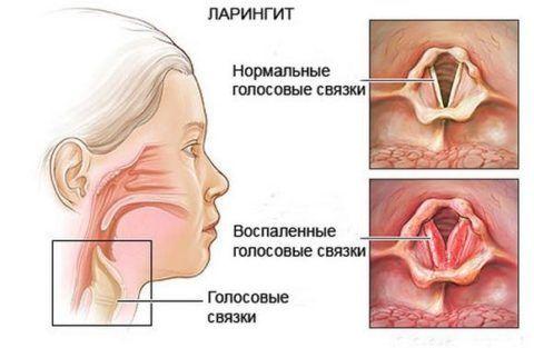 Так выглядят измененные воспалительным процессом голосовые связки (на фото)