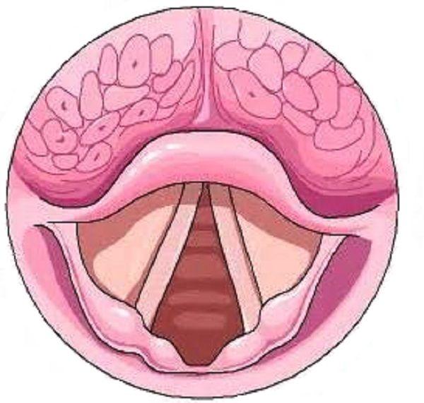 Воспаление и отек структур гортани у грудничка (на фото) возникает быстро и может полностью перекрывать просвет дыхательных путей