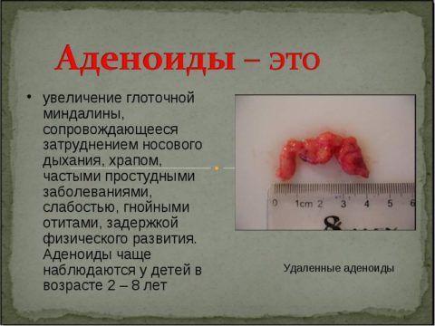 Аденоиды – серьезная патология