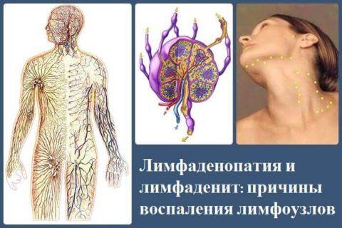 Лимфатическая система подобна кровеносной, с узлами вместо сердца