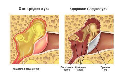 Отит – распространенное заболевание в ЛОР практике
