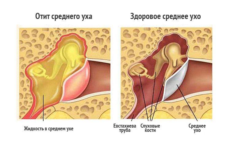 Лечение отитов у взрослого в домашних условиях