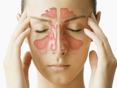 При синуситах сопли в горле появляются из-за стекания слизи из носа в глотку