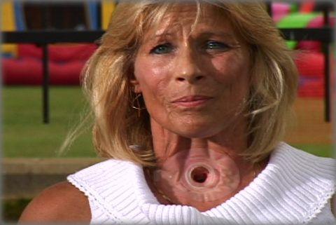 Трахеостома у женщины