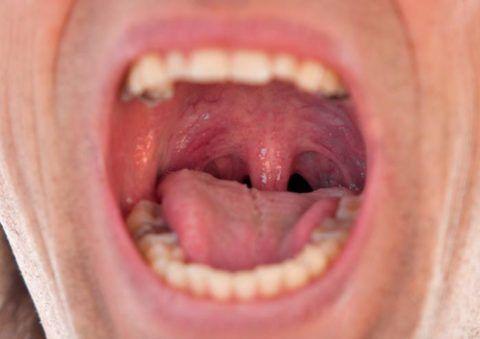 В горле виден воспалительный очаг с одной стороны