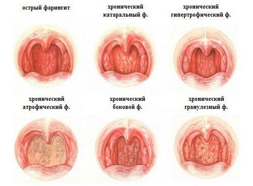 Гипертрофический фарингит симптомы и лечение у взрослых