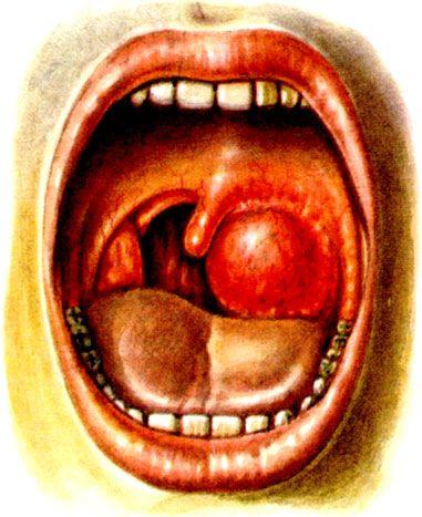 Боль в горле с правой стороны