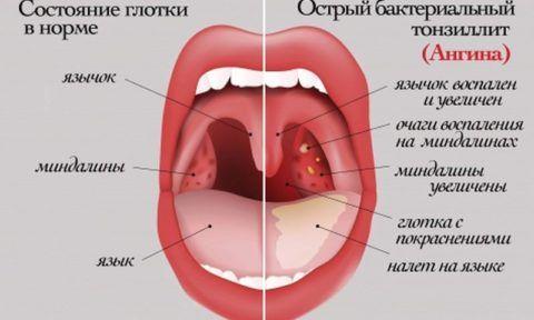 Проявления ангины