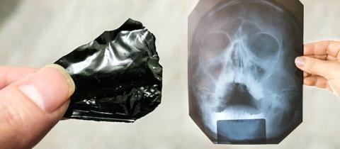 Народная медицина находит эффективным использование мумие при лечении ЛОР-заболеваний